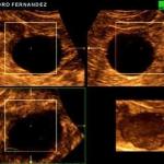3D Triplanar Reconstruction: Renal cyst