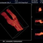 Vascular 3D Ultrasound: Carotid artery