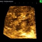 Corte 3D: Tumor hepático